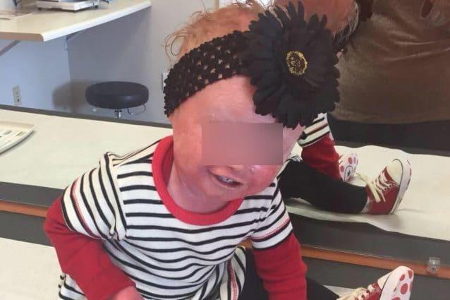 Anna, la bimba che deve fare continui bagni per sopravvivere: la malattia le fa spaccare la pelle